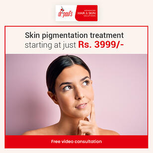 Skin pigmentation treatment creative